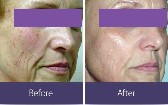 BEFORE AFTER skin resurfacing alma lasersjpg