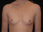 Breast Augmentation - Case Case 11 - Before
