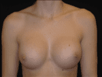 Breast Augmentation - Case Case 16 - After