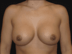 Breast Augmentation - Case Case 20 - After