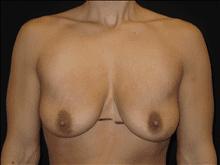 Patient Photo - Case Case 6 - before view-