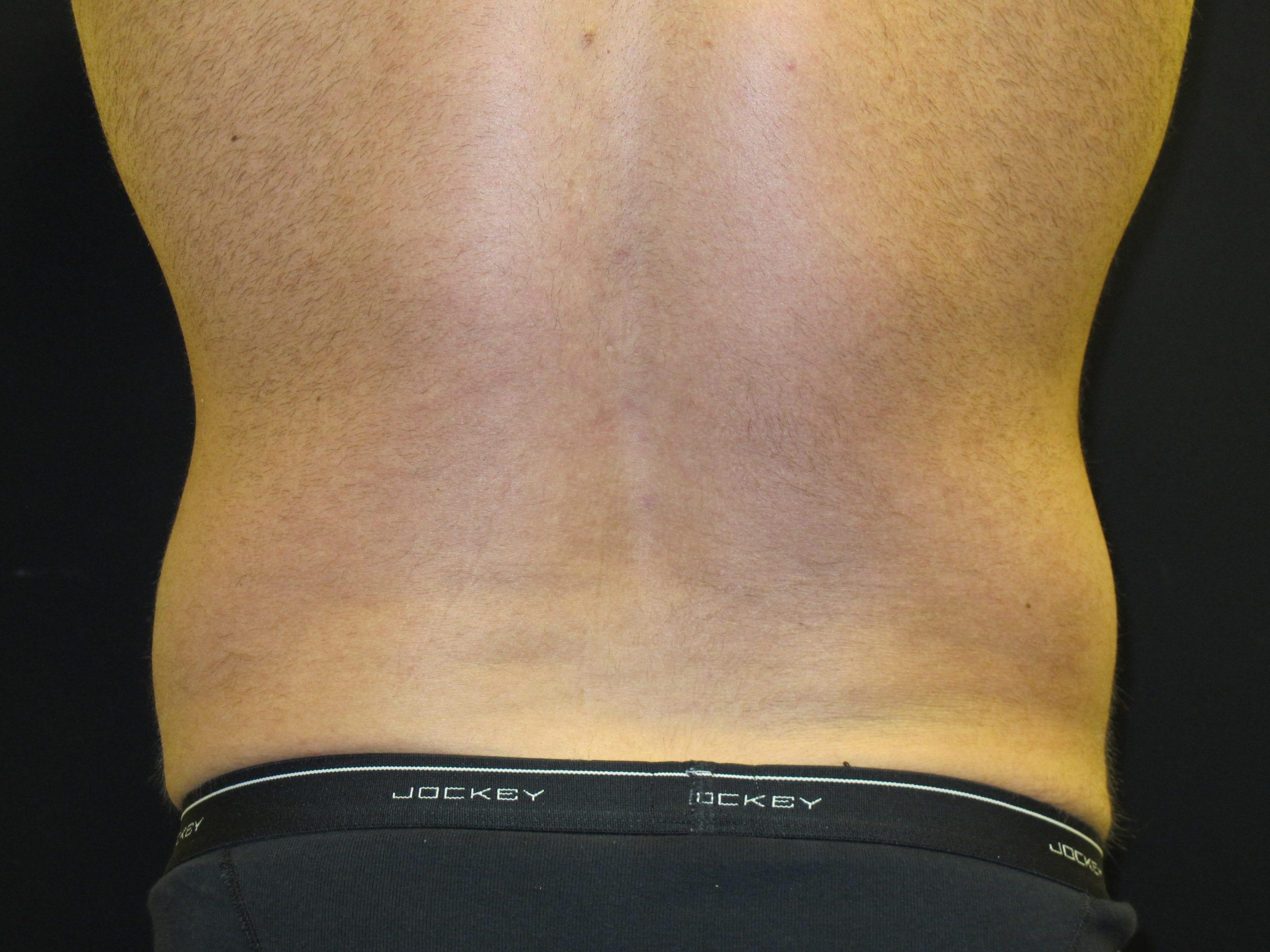 Patient Photo - Case Case 5 - before view-1