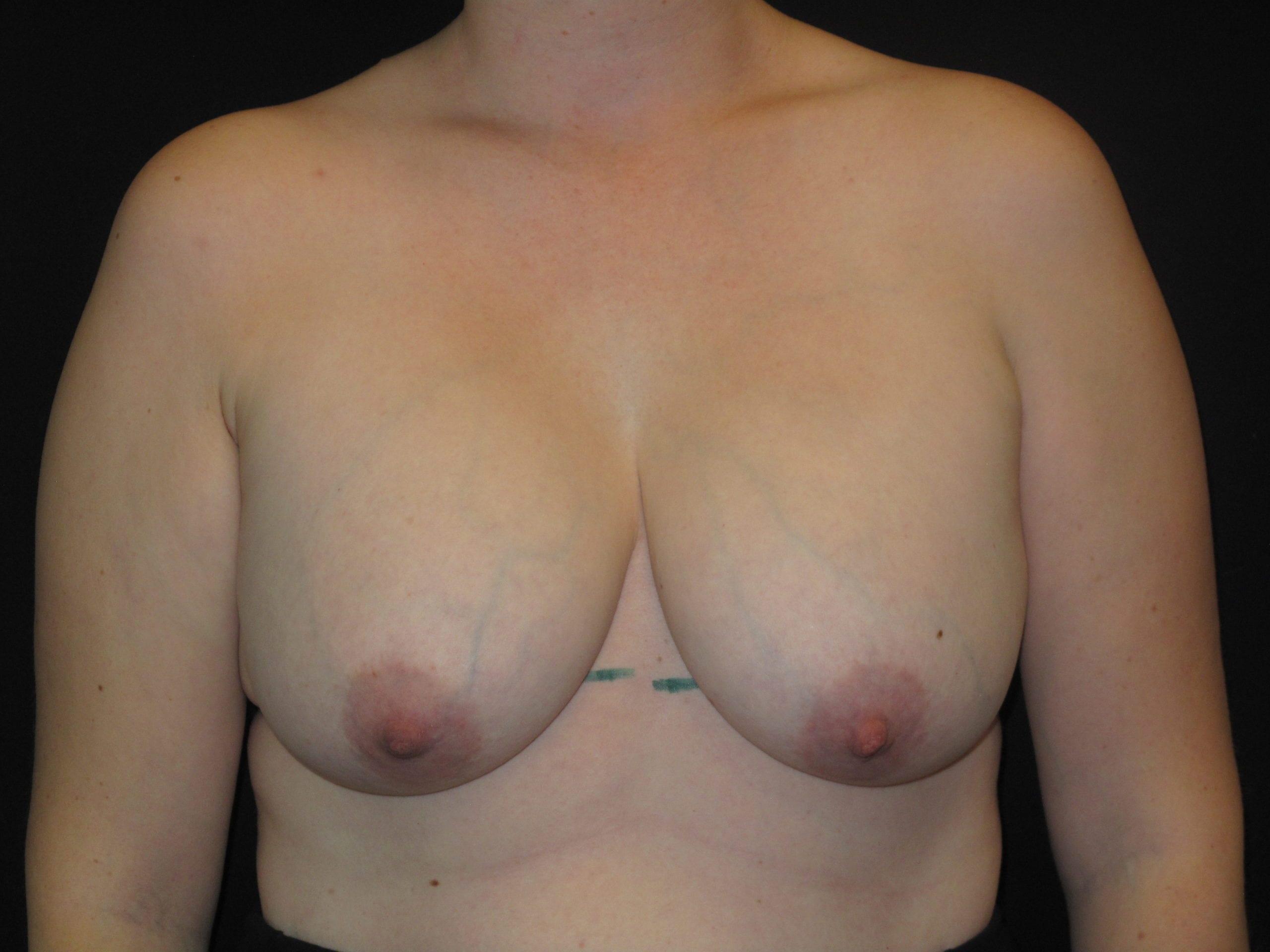 Patient Photo - Case Case 7 - before view-